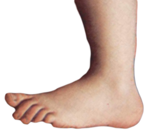 Monty_python_foot